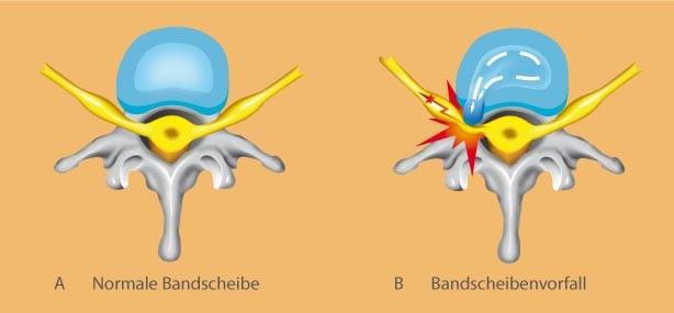 bandscheibenvorfall symptome bws