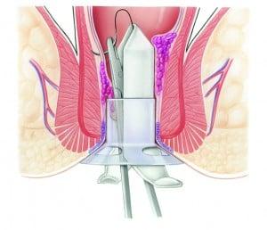 Schritt 2 der Stapler-Haemorrhoidpexie nach Longo