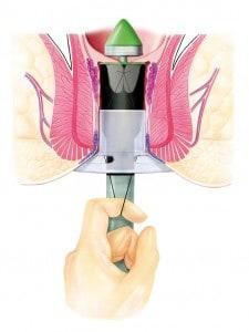 Schritt 4 der Stapler-Haemorrhoidopexie nach Longo