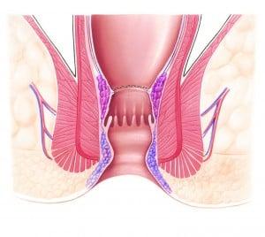 Ergebnis der Stapler-Haemorrhoidopexie nach Longo