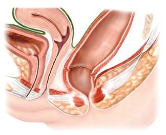 Anatomie des weiblichen Unterleibs