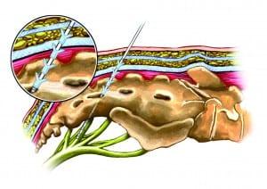 Schemazeichnung der Elektroden-Implantation (© Medtronic)