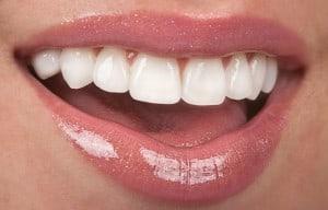 Aesthetische Zahnmedizin