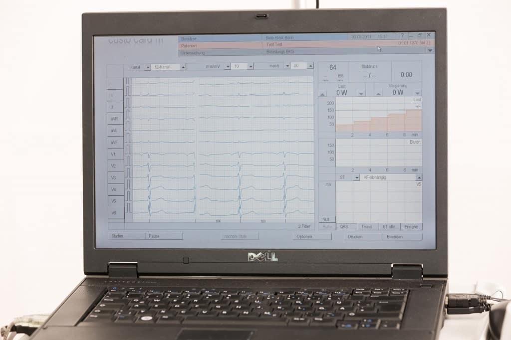 EKG-Aufzeichnung am Laptop