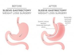Behandlung-Adipositas-Gastric-Sleeve-Verfahren