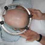 Die Instrumente sind angelegt, die Operation kann beginnen.