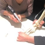 Arthrex-Schulung-fuer-das-OP-Personal_technik_Beta-Klinik